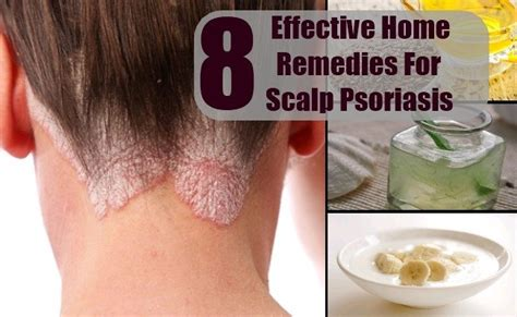 8 Effective Home Remedies For Scalp Psoriasis - Treatment