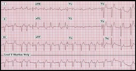 About electrocardiogram | SpanishDict Answers