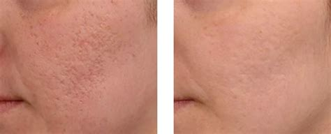 Microneedling | Medical Day Spa of Chapel Hill | 919-904-7111